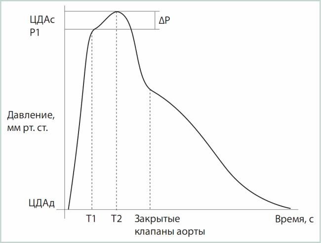 График центрального давления в аорте, полученный при аппланационной тонометрии лучевой артерии.